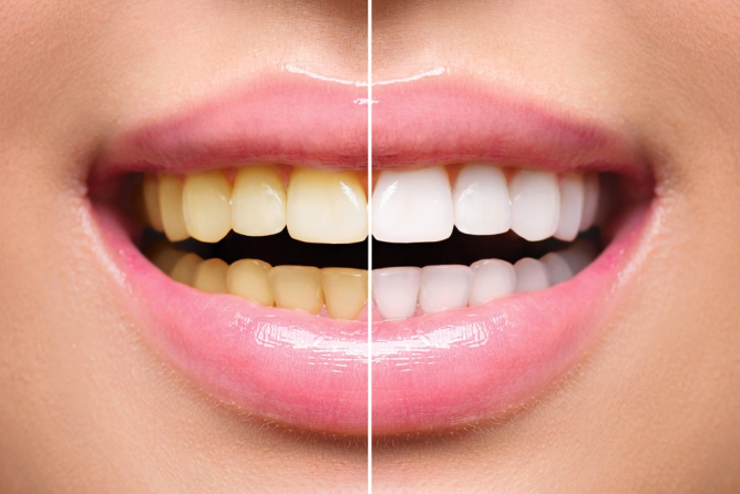 Effective Ways to Whiten Teeth Naturally